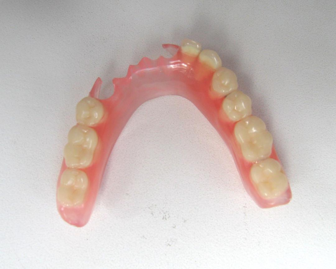 Зубные протезы на крючках: плюсы и минусы кламмеров 16